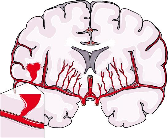 Αιμορραγικό εγκεφαλικό επεισόδιο