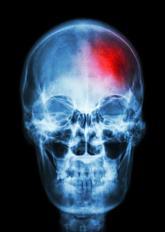 Αιμορραγία στο εσωτερικό του εγκεφάλου