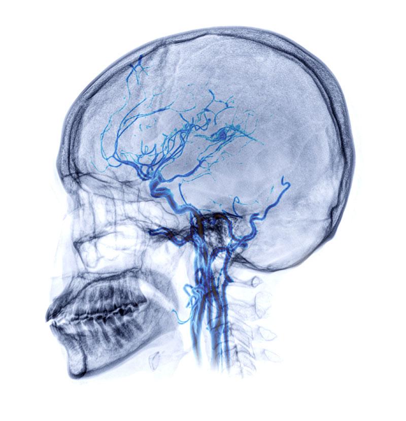 Αξονική αγγειογραφία εγκεφάλου (CTA)