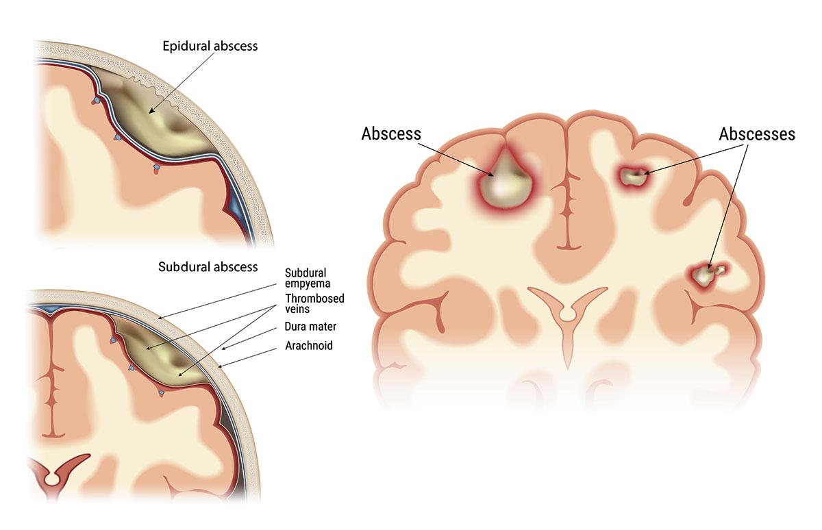Απόστημα εγκεφάλου
