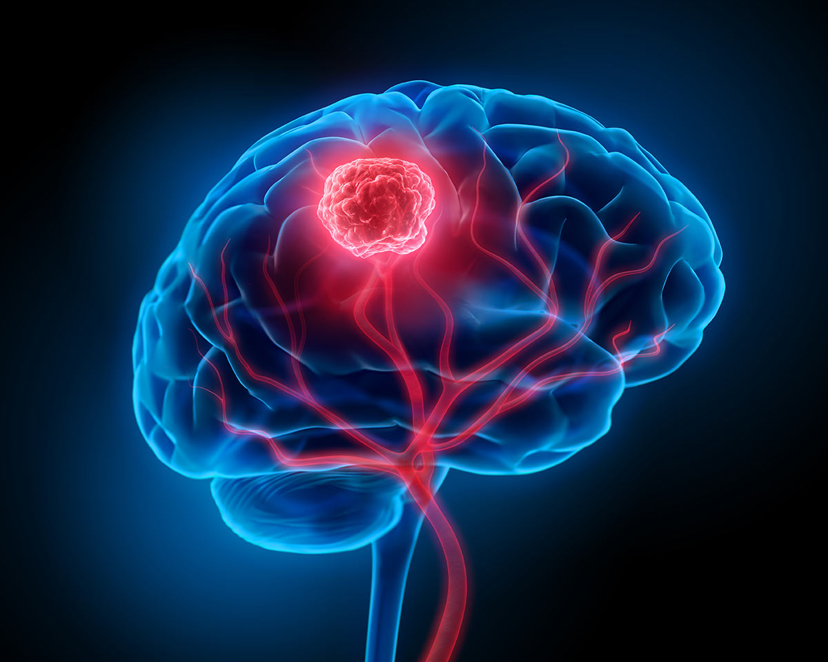 Παθήσεις εγκεγάλου
