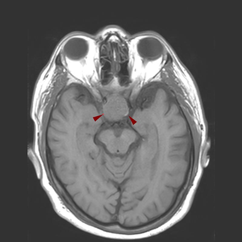 T1W_tra-MRI-ΜΑΚΡΟΑΔΕΝΩΜΑ ΥΠΟΦΥΣΗΣ (ΧΩΡΙΣ ΣΚΙΑΓΡΑΦΙΚΗ ΟΥΣΙΑ)