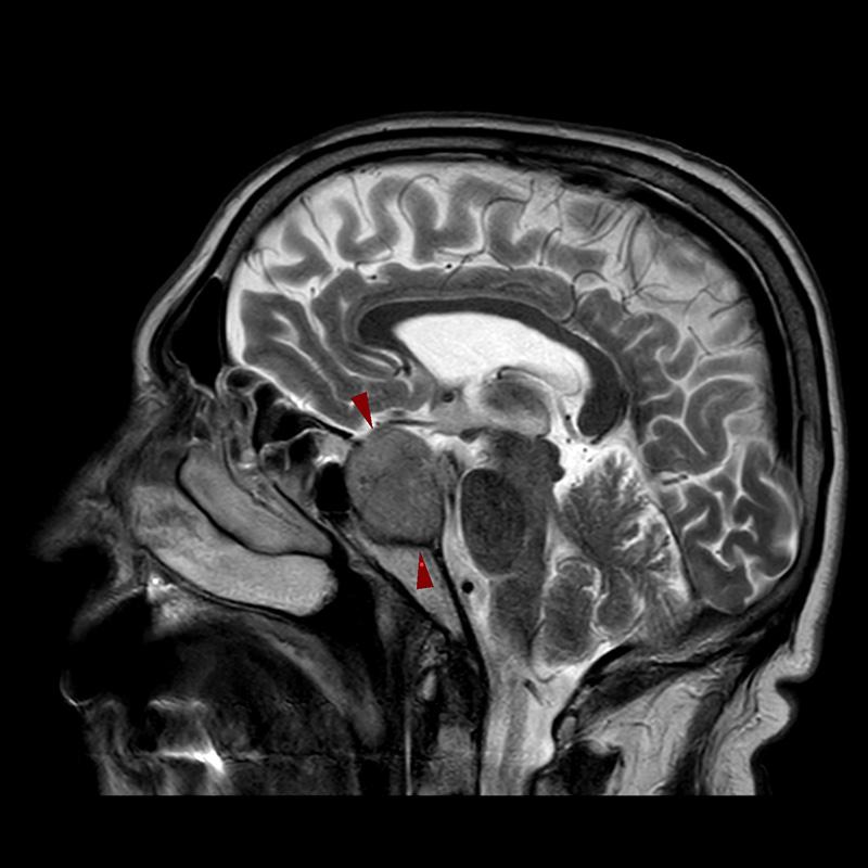 T2W_sag-MRI-ΜΑΚΡΟΑΔΕΝΩΜΑ ΥΠΟΦΥΣΗΣ