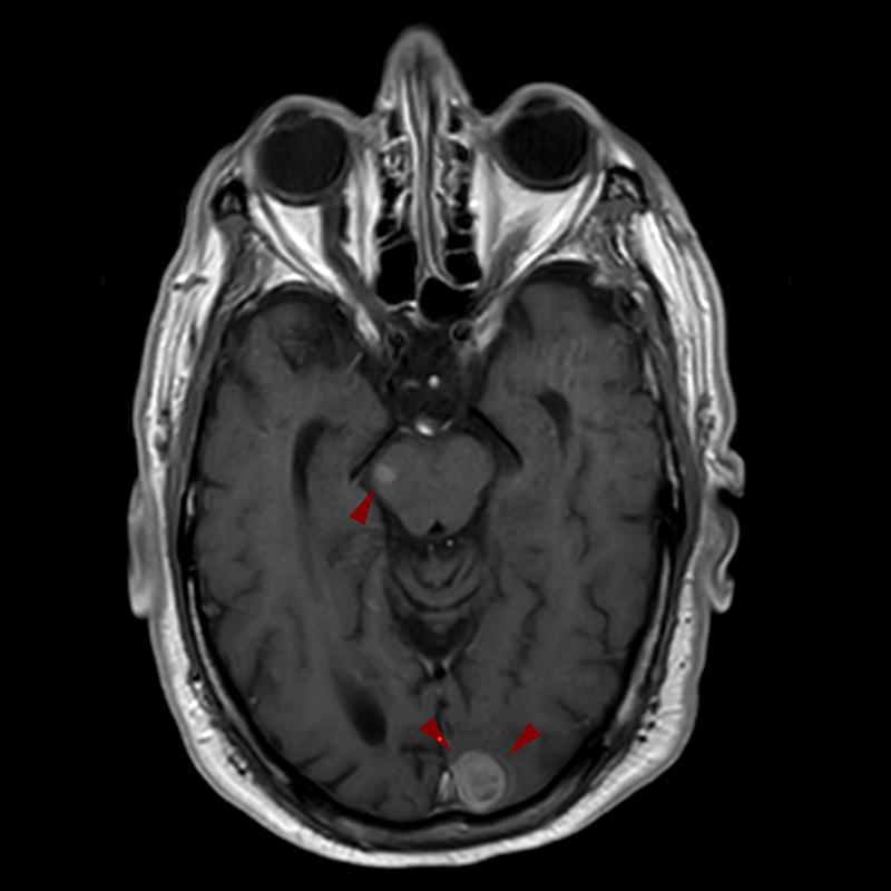 ΠΟΛΛΑΠΛΕΣ ΜΕΤΑΣΤΑΣΕΙΣ ΕΓΚΕΦΑΛΟΥ ΜΕ ΑΡΧΙΚΗ ΕΣΤΙΑ ΤΟΝ ΠΝΕΥΜΟΝΑ -MRI