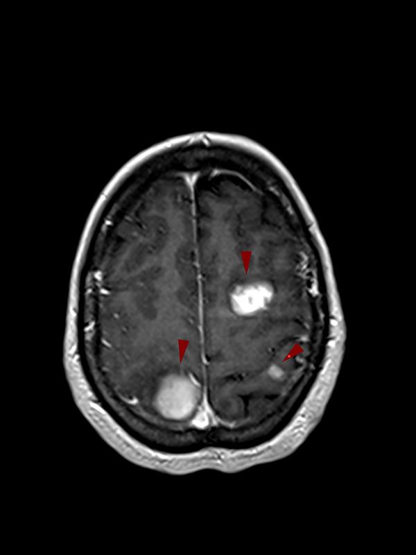 ΠΟΛΛΑΠΛΑ ΜΗΝΙΓΓΙΩΜΑΤΑ ΕΓΚΕΦΑΛΟΥ-MRI