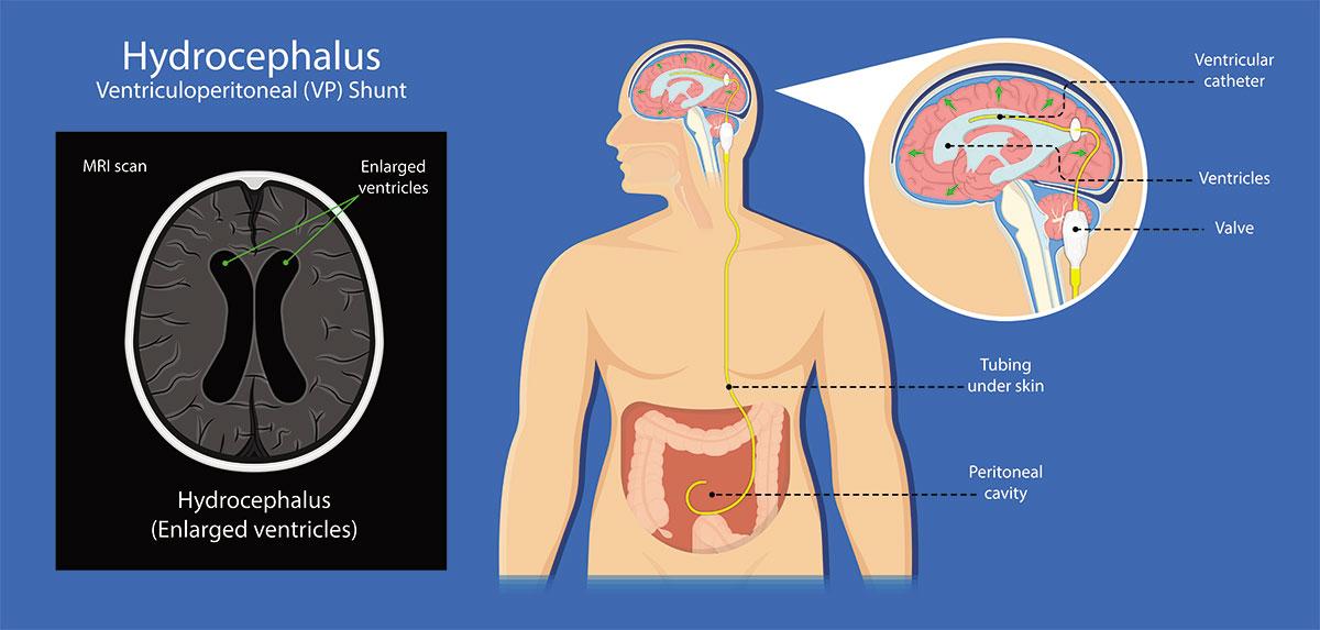 Τοποθέτηση βαλβίδας εγκεφάλου