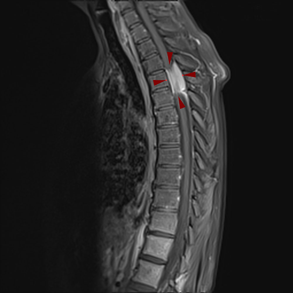 ΕΝΔΟΣΚΛΗΡΙΔΙΟΣ-ΕΞΩΜΥΕΛΙΚΟΣ ΟΓΚΟΣ ΘΜΣΣ-MRI