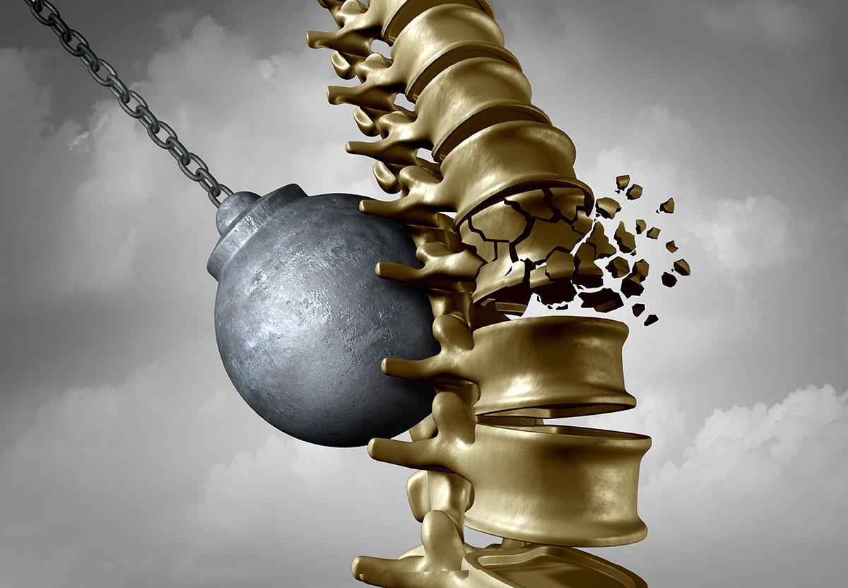 Τα κατάγματα σπονδυλικής στήλης χωρίζονται σε δύο κατηγορίες: σε αυτόματα και σε τραυματικά.