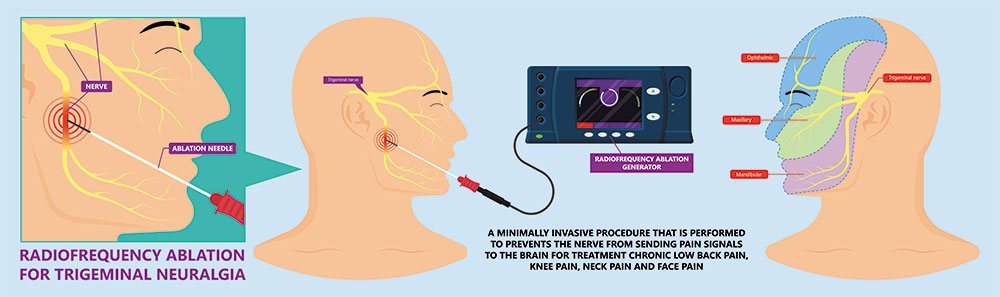 Νευρόλυση με Ραδιοσυχνότητες